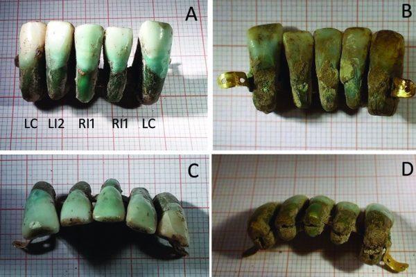 Afbeeldingen van de prothese (Universiteit van Pisa)