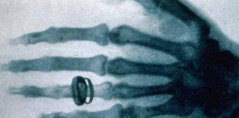 Wilhelm Röntgen (1845-1923) – Ontdekker röntgenstraling
