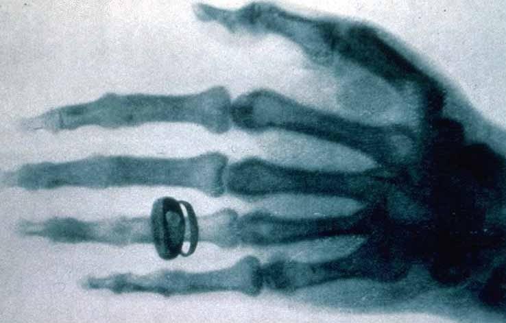 Een van de eerste röntgenfoto's gemaakt van de hand van Albert von Kölliker