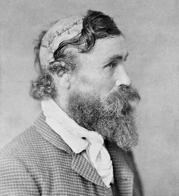 Robert McGee, gescalpeerd door Little Turtle (Foto: ca. 1890)