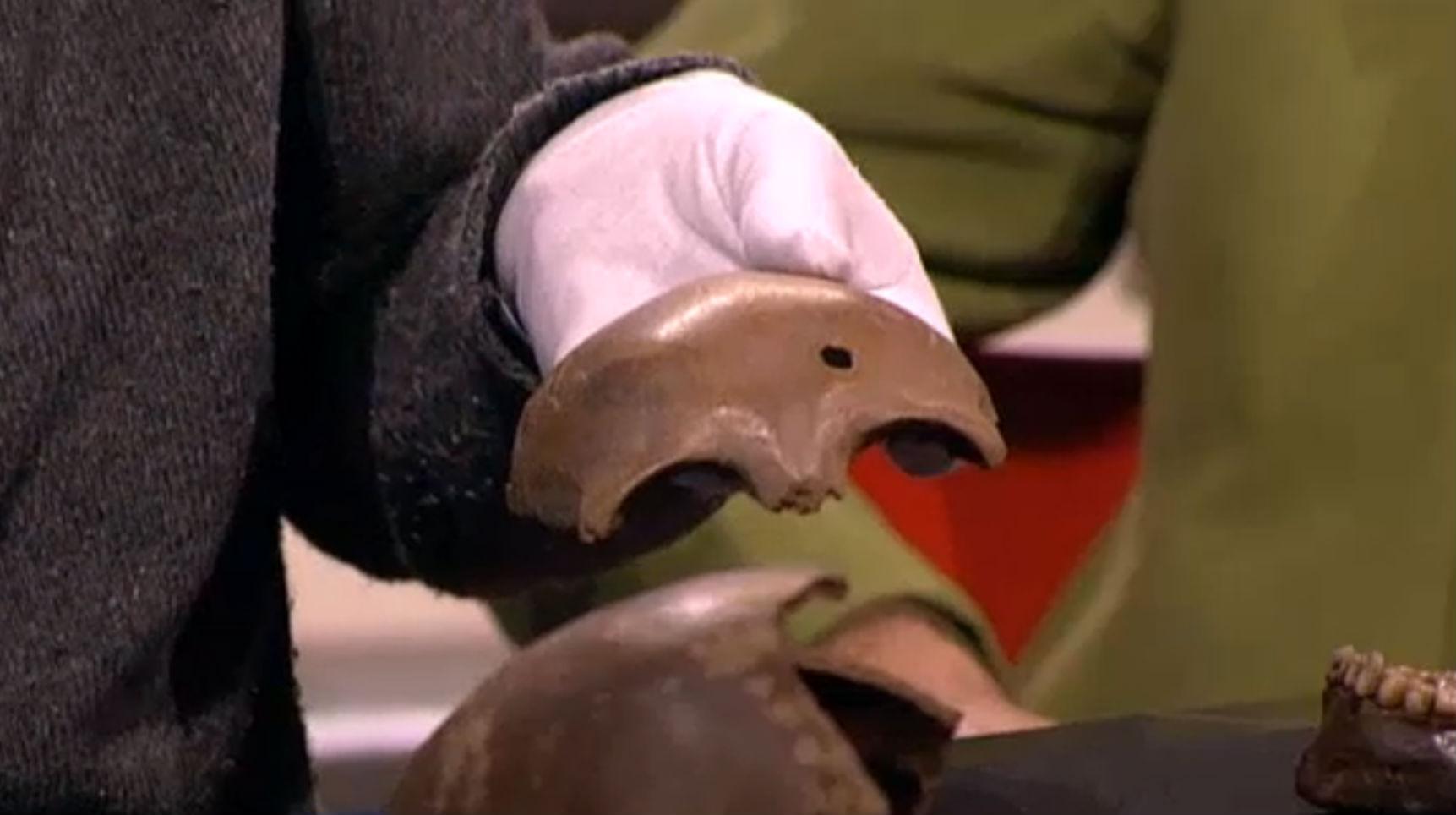 Gat in een schedel dat vermoedelijk is veroorzaakt door de inslag van een Romeinse werpspies (Still DWDD)