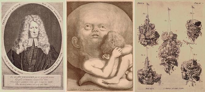 Portret van Frederik Ruysch op 85 jarige leeftijd. Daarnaast kopergravuren van het kind en de vijf weefselfragmenten. Gediagnosticeerd als een intracranieel teratoom met foetale kenmerken. De vroegste beschrijving tot nu toe.