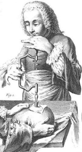 18e-eeuwse illustratie van schedeltrepanatie (wiki)