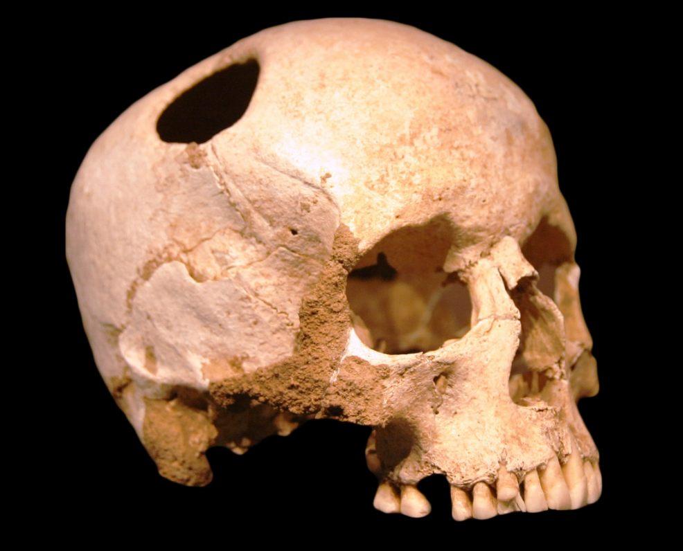 Doorboorde schedel uit de ijzertijd