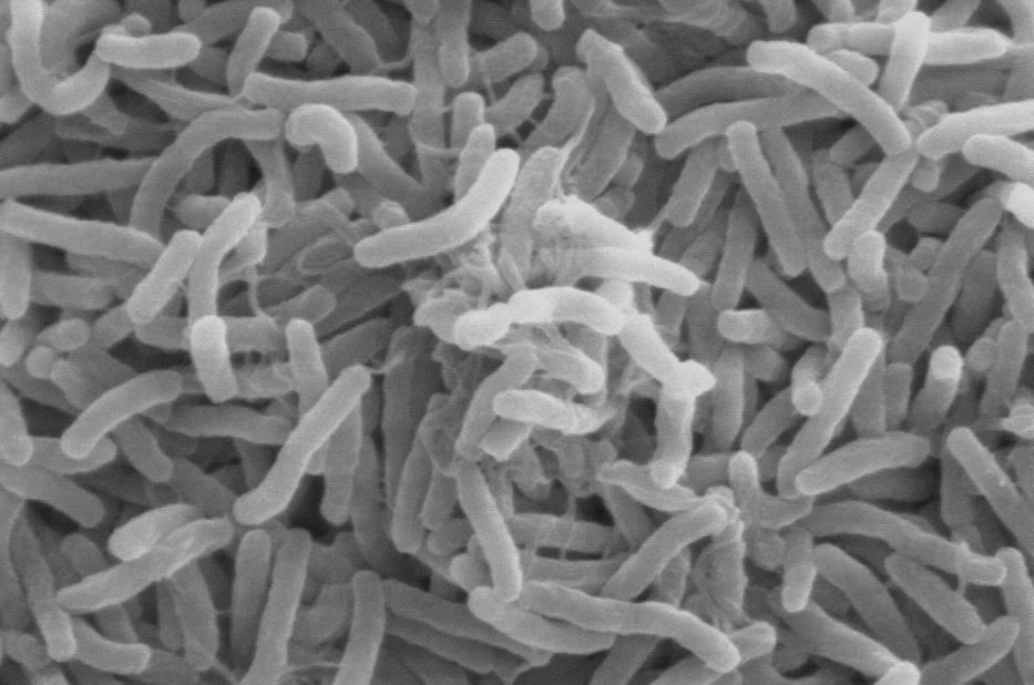 Krijg de kolere! - Cholerabacteriën (wiki)