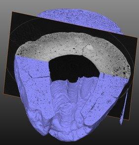 Beeld van de analyse aan de TUDelft met een micro-CT scanner. Hiermee was het mogelijk om doorsnedes te maken en afdrukken te reconstrueren zonder dit complete eivormige kroesjes verder te beschadigen.