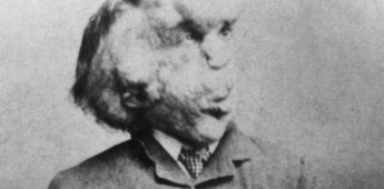 Joseph Merrick (1862-1890) – 'The Elephant Man'
