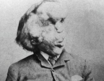 Joseph Merrick, alias 'The Elephant Man' (Publiek Domein - wiki)
