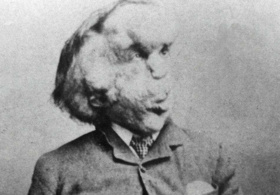 Joseph Merrick, alias 'The Elephant Man' (Publiek Domein - wiki)