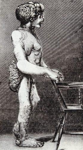 Afbeelding van Joseph Merrick die in 1886 gepubliceerd werd in de  British Medical Journal (Publiek Domein - wiki)