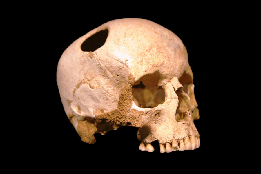 Doorboorde schedel uit de ijzertijd (CC BY-SA 3.0 fr - Rama - wiki)