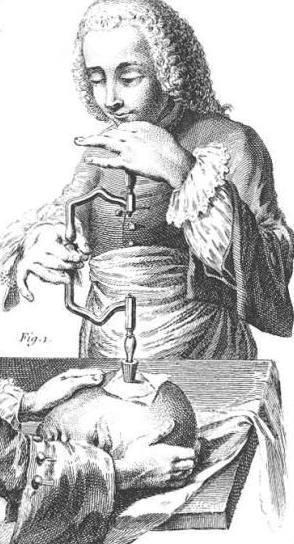 18e-eeuwse illustratie van schedeltrepanatie