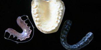 De beugel: een korte geschiedenis van de orthodontie
