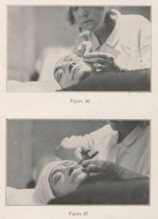 Suzanne Noël tijdens een operatie. Afbeelding uit haar boek 'La Chirurgie esthétique, Son Rôle social'