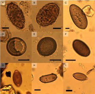 Eitjes van darmparasieten, gevonden in de onderzochte beerputten
