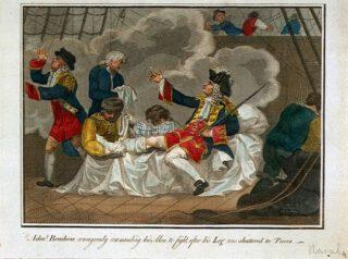 Viceadmiraal John Benbow wordt behandeld aan zijn been